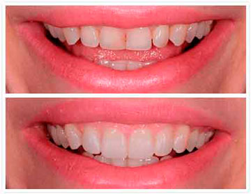 Фото зубов: до использования и со съемными винирами